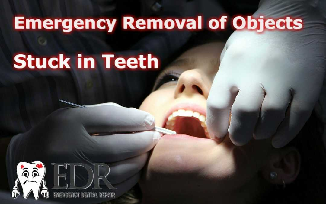 Emergency Removal Of Objects Stuck in Between Your Teeth